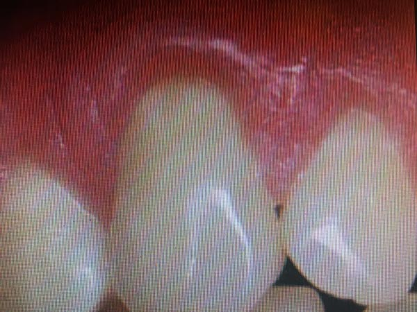 Soft Tissue Grafting - After