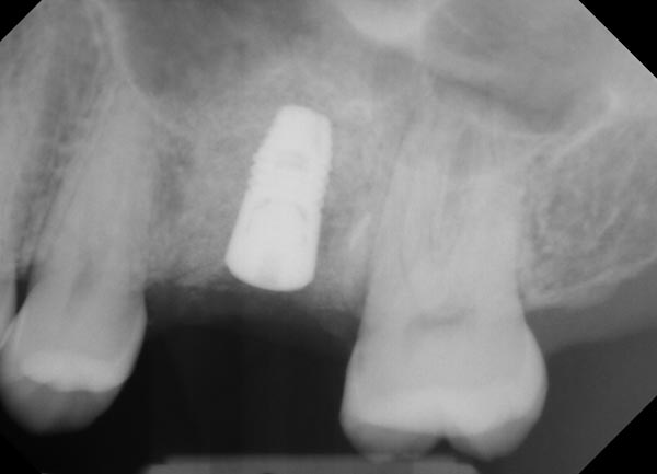 Successful Placement of Implant