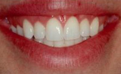 Cosmetic Periodontal Surgery - After