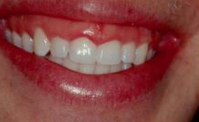 Cosmetic Periodontal Surgery - Before